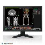 EIZO RadiForce MX241W-BK 2.3MP 24.1 zoll Röntgen TFT monitor